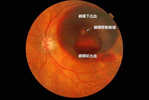 網膜細動脈瘤