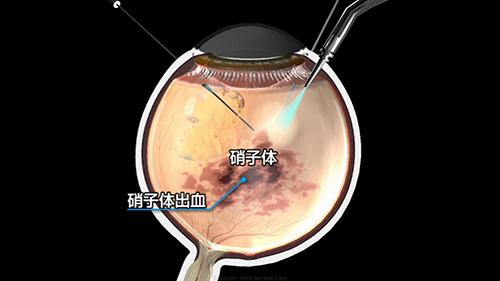 硝子体手術のイメージ