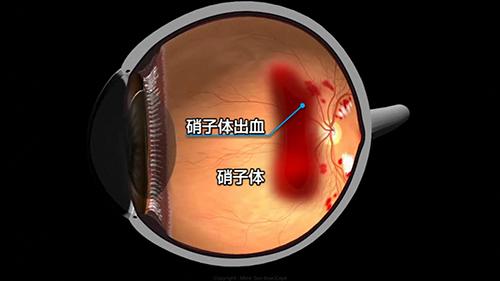 硝子体出血を発症した眼球
