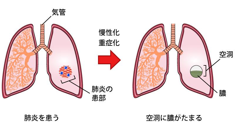 痛い コロナ 肺