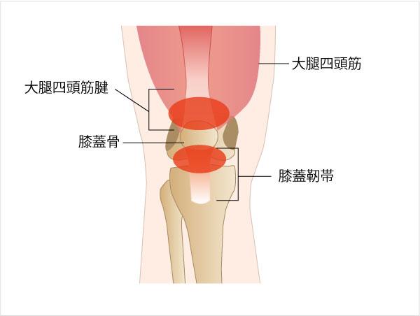 図:ジャンパー膝が起こりやすい場所