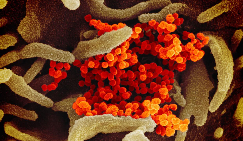 ウイルスに効く薬をつくるのはなぜ難しい?