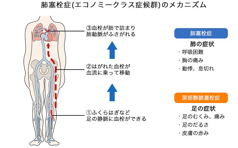 肺塞栓症(エコノミークラス症候群)のメカニズム