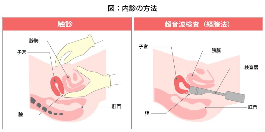 嚢腫 もの 卵巣 おり