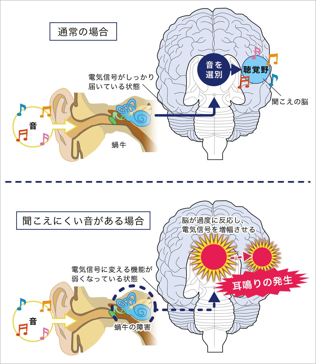 脳が音を認識する仕組み