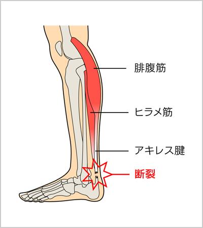 「アキレス腱断裂」の画像検索結果