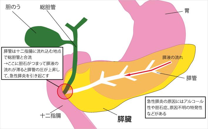 炎 慢性 すい すい臓の病気の仕組み(すい炎/すいがん/糖尿病)