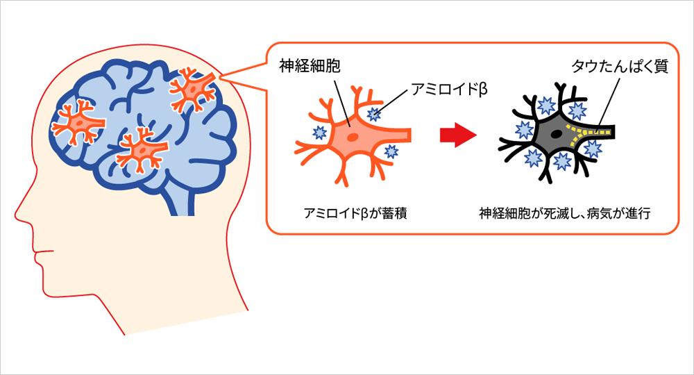 認知 アルツハイマー 症 特徴 型