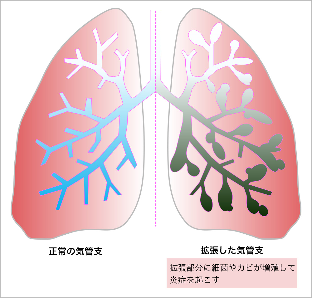 気管支拡張症 (きかんしかくちょうしょう) 病名から探す  社会 ...