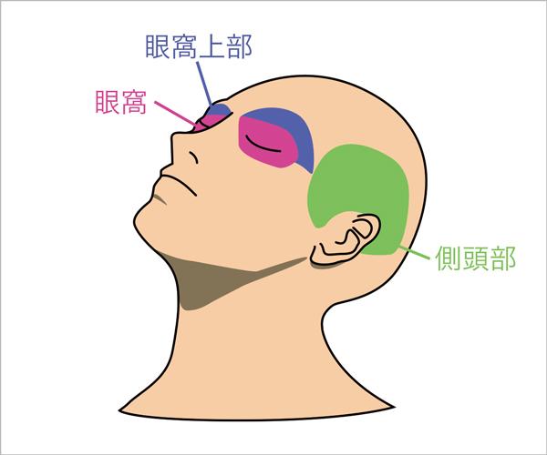 頭痛 鼻 詰まり