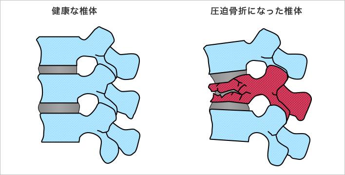 骨折 看護 圧迫 腰椎