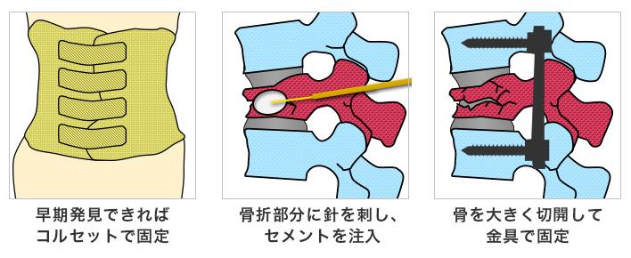 圧迫 看護 腰椎 骨折