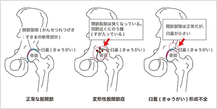 しこり 痛い 股関節