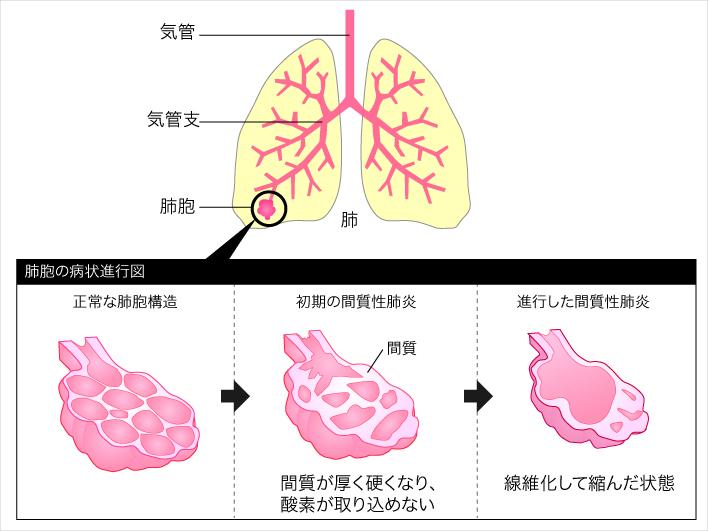 間質性肺炎・肺線維症 (かんしつせいはいえん・はいせん ...