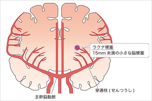 ラクナ 梗塞 症状