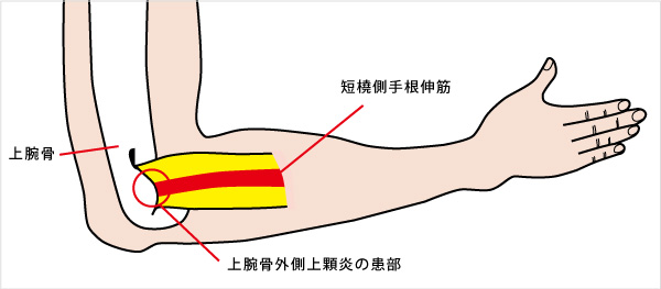 上腕骨外側上顆炎 (通称:テニス肘) (じょうわんこつがいそくじょうかえん) | 済生会
