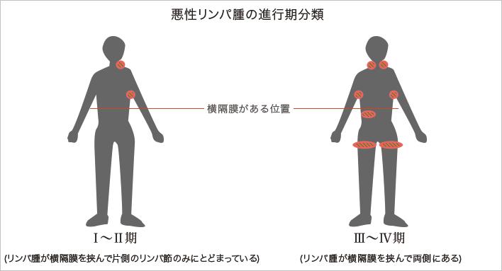 悪性リンパ腫 (あくせいりんぱし...