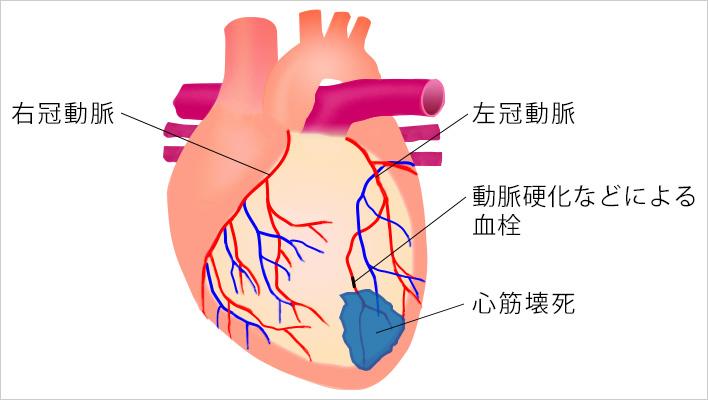 死 急性 心臓