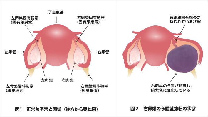 水たまり 卵巣