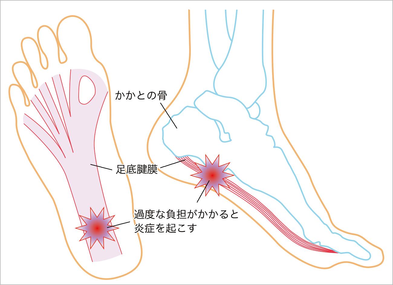 足底腱膜解剖