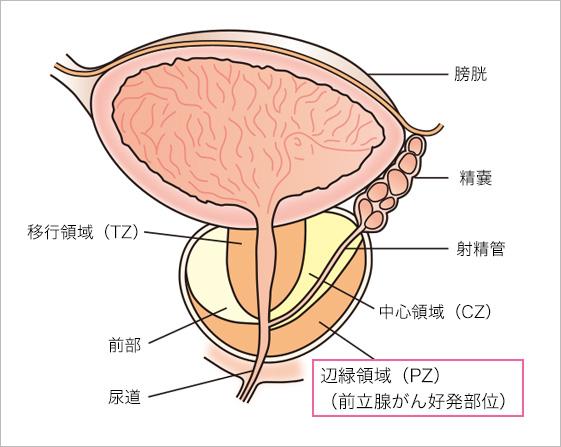前立腺 癌 tnm