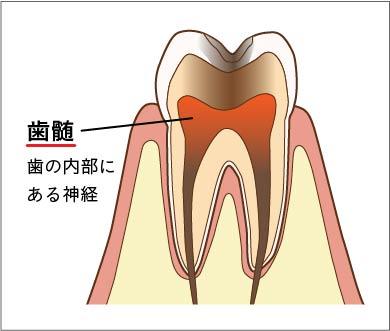 痛み 喉 ない の 治ら