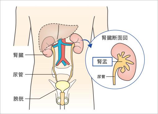 腎盂尿管がん (じんうにょうかんがん) | 社会福祉法人 恩賜財団 済生会