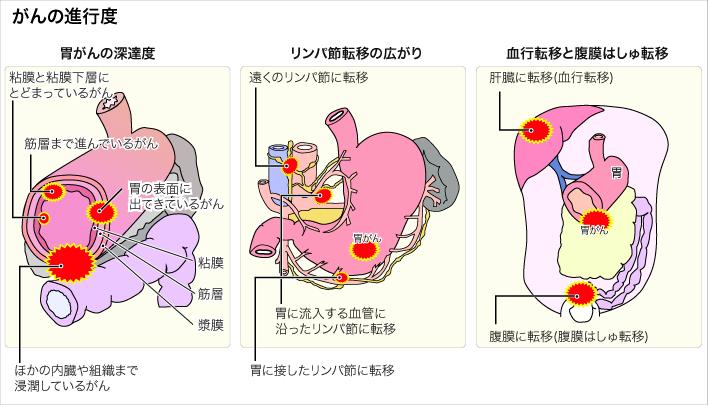 社会福祉法人 恩賜財団 済生会(しゃかいふくしほうじん おんしざいだん さいせいかい)胃がん