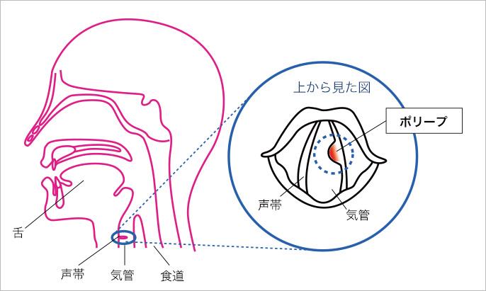 声帯 ポリープ 症状